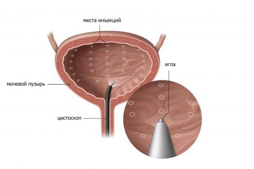 Инъекции Ботокса в мочевой пузырь