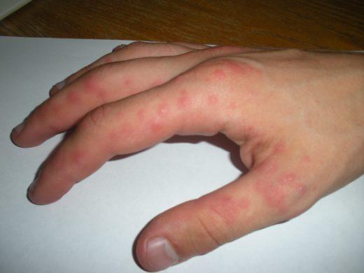 Потница симптомы и лечение