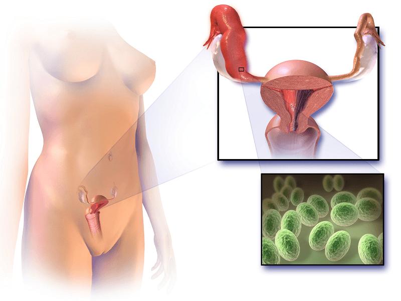Что такое сальпингит, его виды (острый, хронический и пр), симптомы, диагностика и лечение