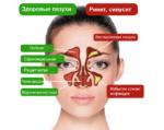 Придаточные пазухи носа в норме и при патологии
