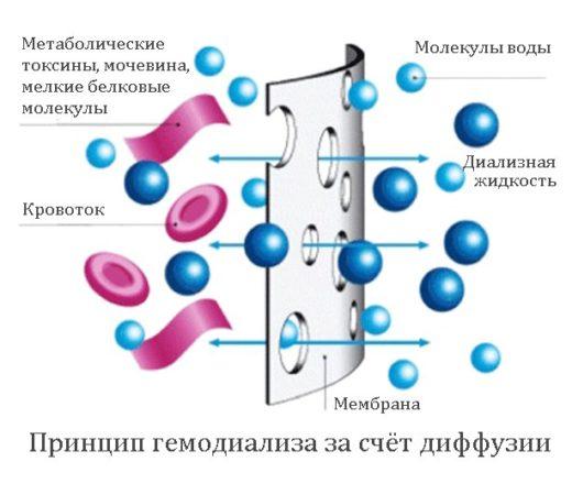Принцип гемодиализа (схема)