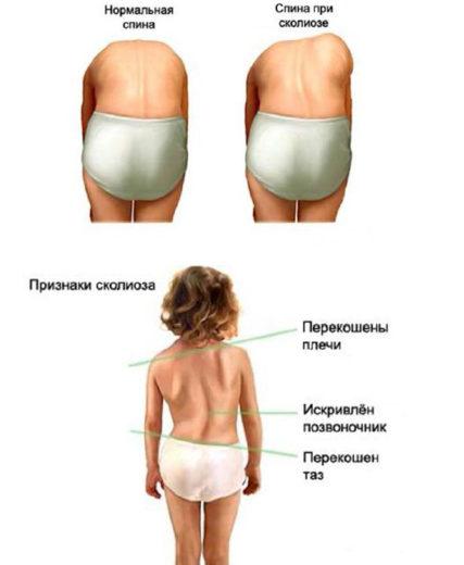 Признаки сколиоза: нормальная спина и спина при сколиозе