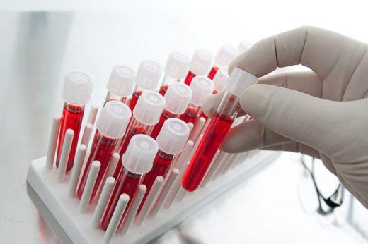 Пробирки с кровью для последующего лабораторного исследования