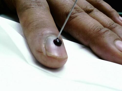 Прокол ногтевой пластины