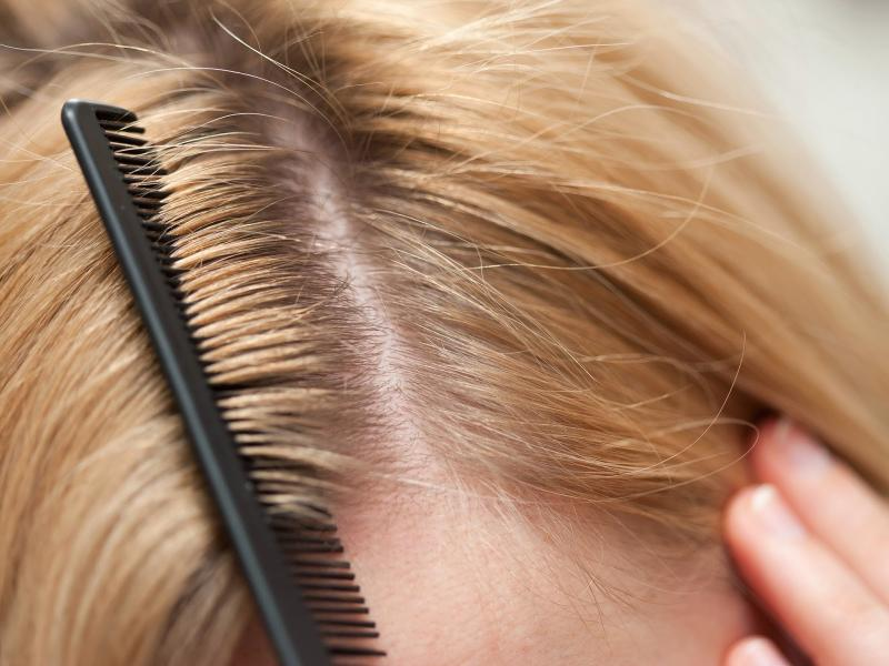 Псориаз головы — коварная хроническая патология