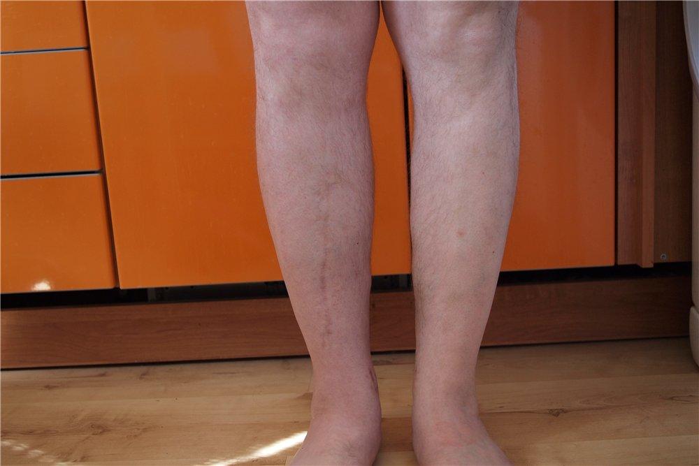 Чем лечить тромбофлебит нижних конечностей в домашних  959