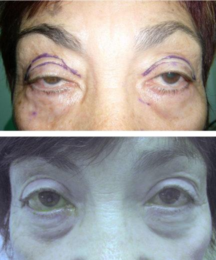 До и после хирургического лечения птоза