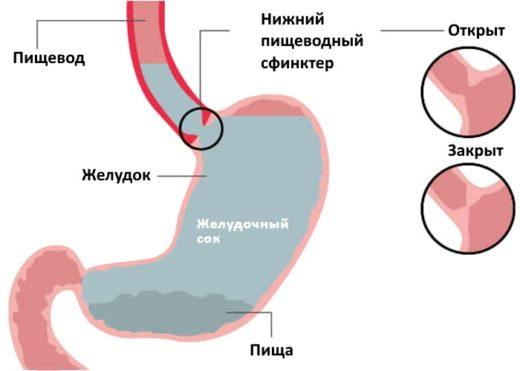 Схема заброса кислоты из желудка в пищевод