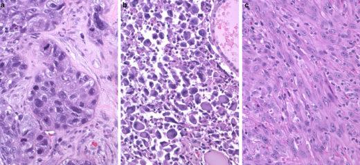 Макрофотогрфии анапластического рака щитовидной железы