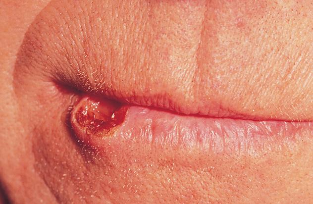 неприятный запах изо рта после установки коронок