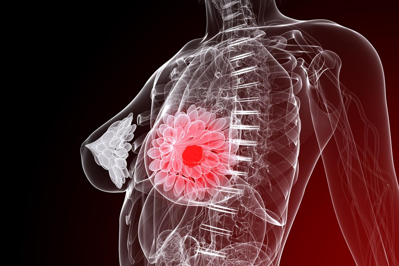 Вторая стадия рака молочной железы: не время медлить с лечением