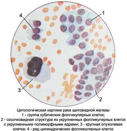 Цитология рака щитовидной железы
