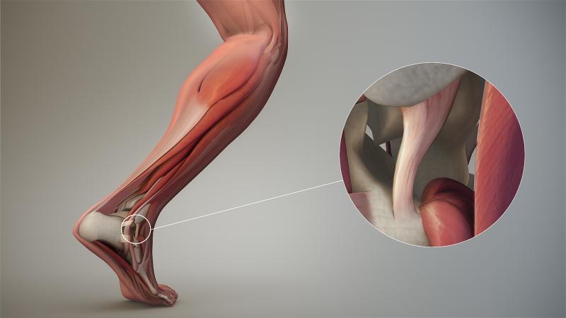 Растяжение связок: особенности лечения и восстановления