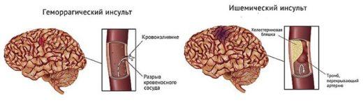 Различие двух видов инсультов