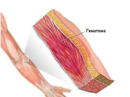 Вмд мышечных волокон в области гематомы