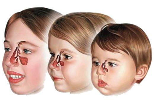 Схема развития гайморовых пазух у детей