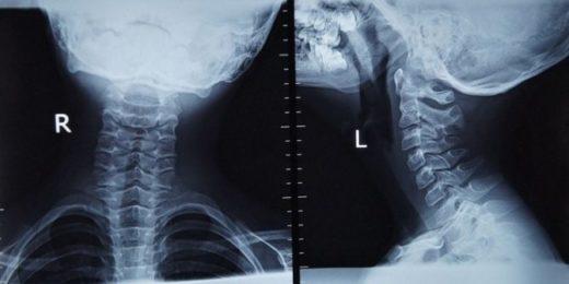 Рентгенография шейного отдела позвоночника