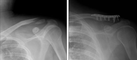 Рентген ключицы до и после остеосинтеза