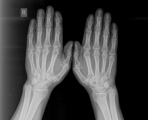 Рентгеновский снимок кистей