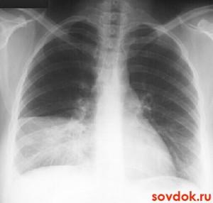 рентген пневмония справа