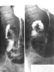 Рентген с контрастированием желудка
