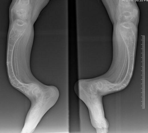 Рентгенографическое изображение костей при «хрустальной болезни»