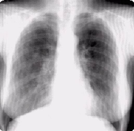 Рентгенограмма при бронхиолите