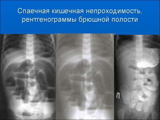 Рентгенологическая картина при кишечной непроходимости