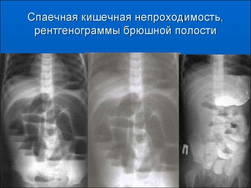 Симптомы, лечение, профилактика, диета при спаечной болезни брюшной полости