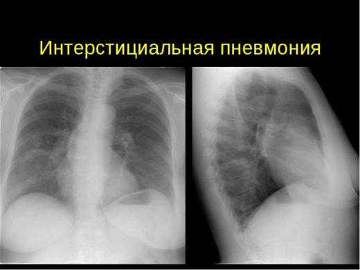 Рентгенологическое изображение лёгких