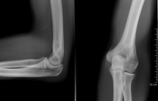 Рентгеновская картина нормальной конфигурации локтевого сустава