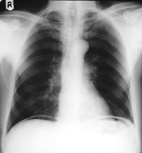 Рентгеновский снимок грудной клетки при перфорации полого органа