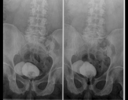 Рентгеновский снимок микционной цистоуретрографии