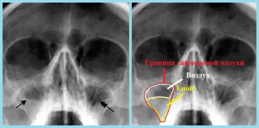 Рентгеновский снимок при диагностике гайморита