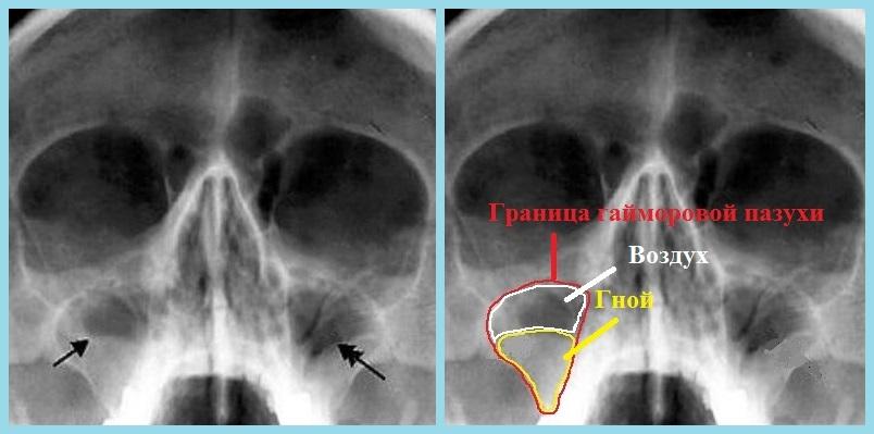 Я беременная сделала рентген пазух носа