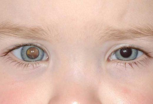 Ретинобластома правого глаза у ребёнка