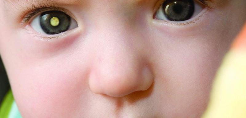 Ретинобластома: злокачественная опухоль сетчатки у детей