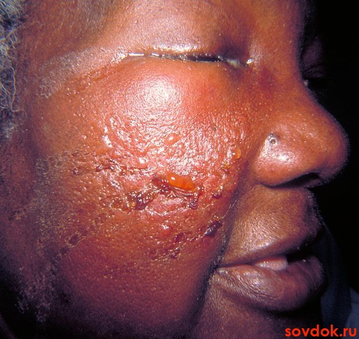 Рожа фото болезнь