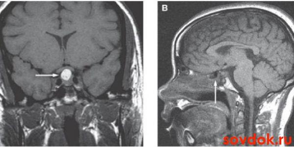 ртомография головного мозга при несахарном диабете