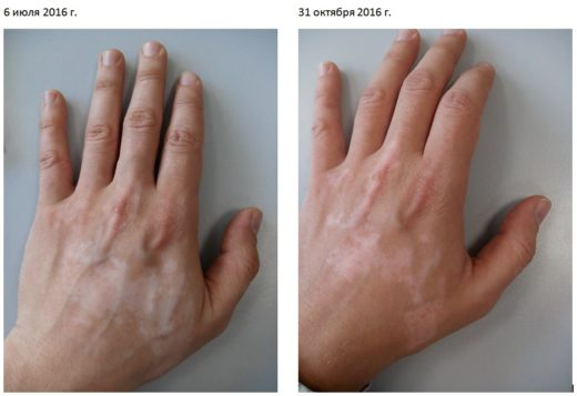 Рука пациента с витилиго после прохождения курса физиолечения