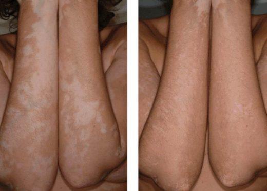 Руки пациента после косметических процедур