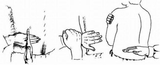 Руки врача простукивают спину в области почек