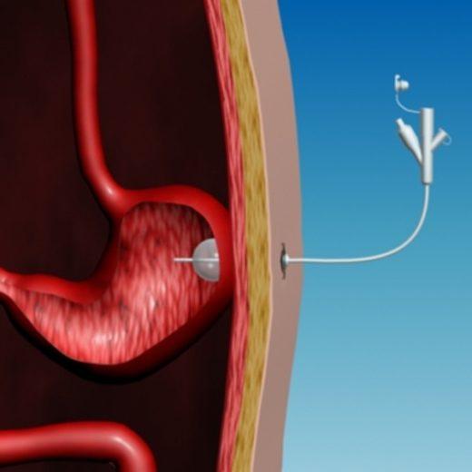 схема гастростомии