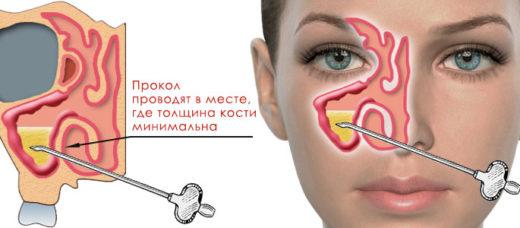 пункция гайморовой полости