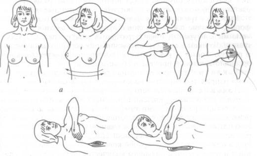 самообследование груди