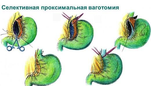 Селективная проксимальная ваготомия