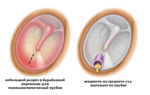 Тимпаностомия