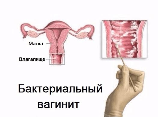 seks-feodosiya-v-kontakte