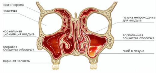 Схема строения гайморовых синусов и воспаления одного из них