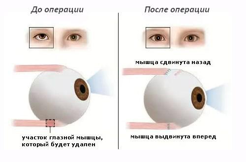 Схема хирургического лечения при косоглазии